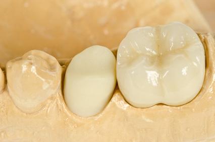 Schöne Zähne aus Vollkeramik